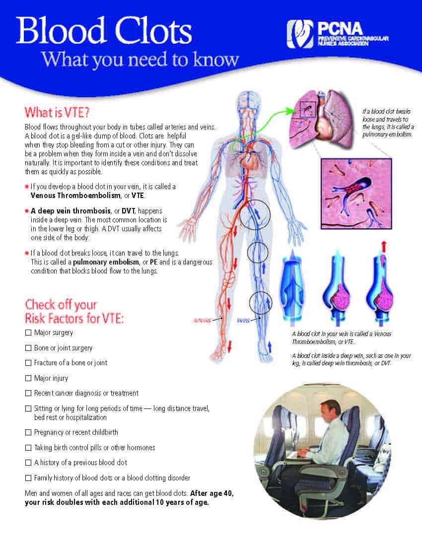 VTE and Blood Clots Cover