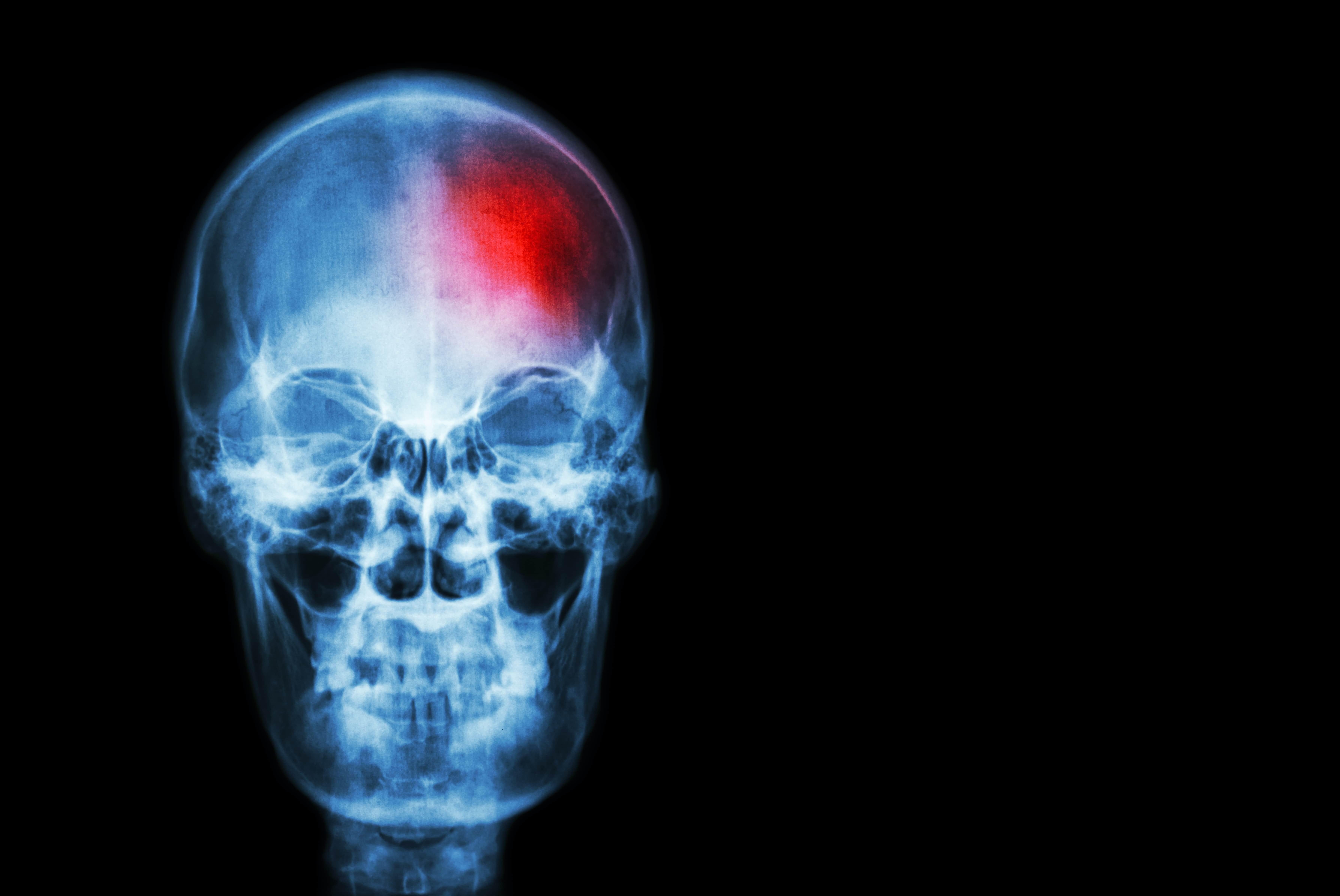 stroke skull xray-min