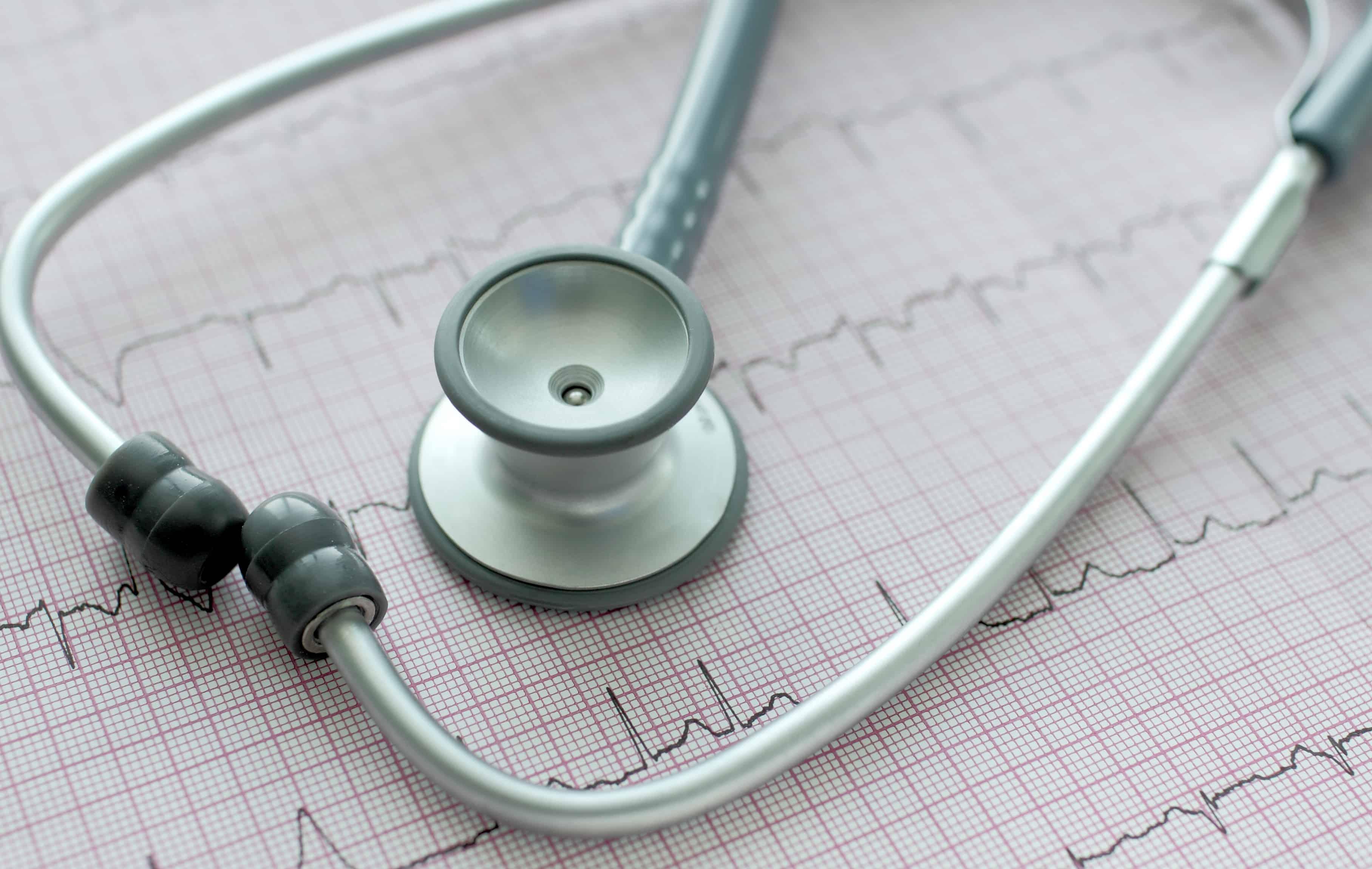 stethoscope on the ECG. Symbolic close-up photo