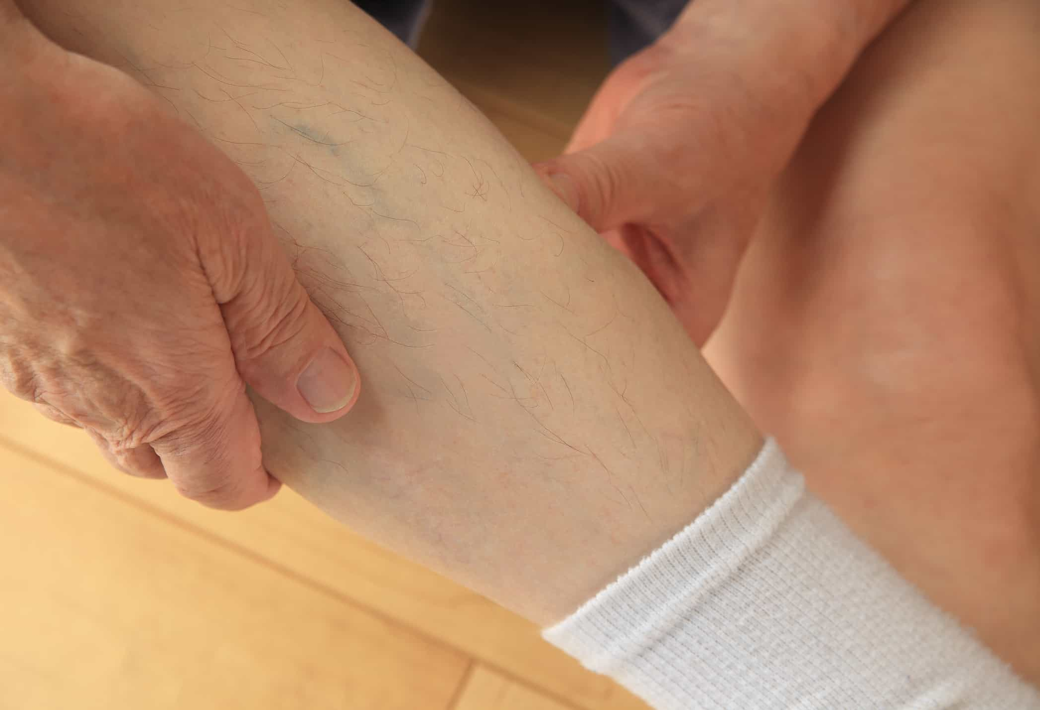 An older man with his hands on a sore calf