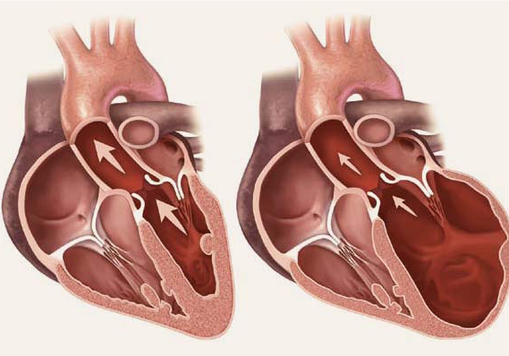 Image of a heart in heart failure